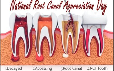 Happy National Root Canal Appreciation Day!!
